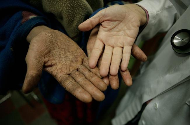 Manos de paciente y doctora en el hospital de Gambo, Etiopía Fotógrafo: Pablo María García Llamas. Banco de imágenes y sonido INTEF http://recursostic.educacion.es/bancoimagenes/web/