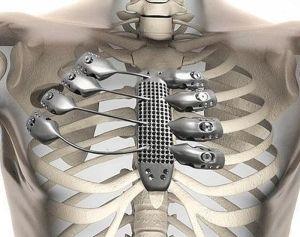 Implantes 3D